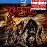 KREATOR - Dying Alive (Dvd, Blu Ray)